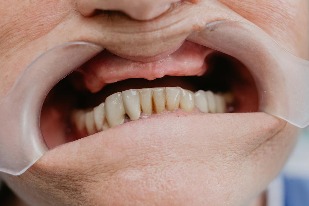 Quais problemas a falta de dente pode causar?