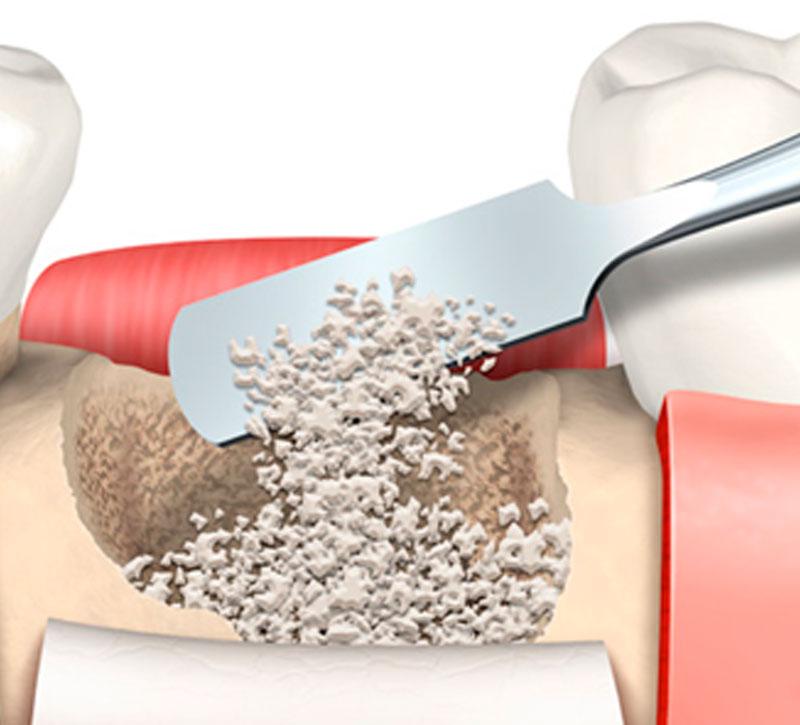 Periodontia e cirurgias periodontais estéticas